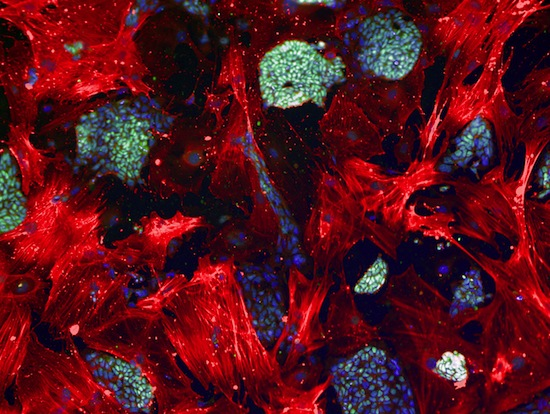 Las celulas madre mesenquimales